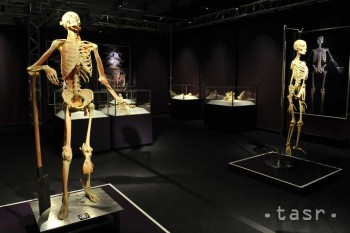 Výstava The Human Body - Dobrá, či zlá? Zakázať, či povoliť?