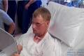 TENTO PRÍBEH NAPÍSAL ŽIVOT: Muž podstúpil transplantáciu tváre