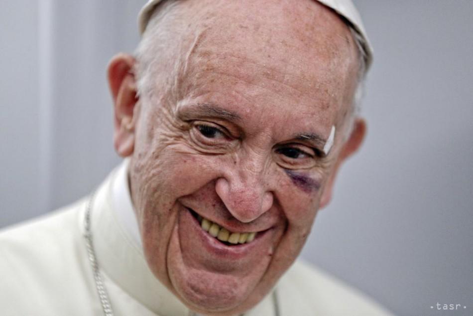 Pápež  Nad prenasledovaním kresťanov nesmie nikto zatvárať oči 7bd10abc475