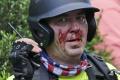 Táto socha spôsobila konflikty v Charlottesville: Bude odstránená