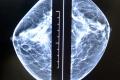 Skríning prsníkov v rámci Roka prevencie sa začne v septembri