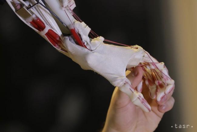 VIDEO: Takto roboty operujú oči, pečeň a odstraňujú nádory