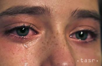 Chcete sa zbaviť opuchnutých očí? Tu je päť tipov ako na to