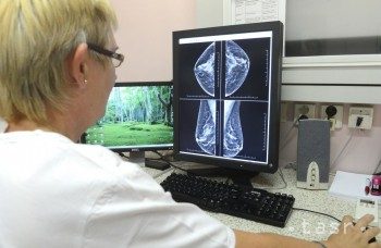 Ženy by mali myslieť na prevenciu rakoviny prsníka, pripomína lekár